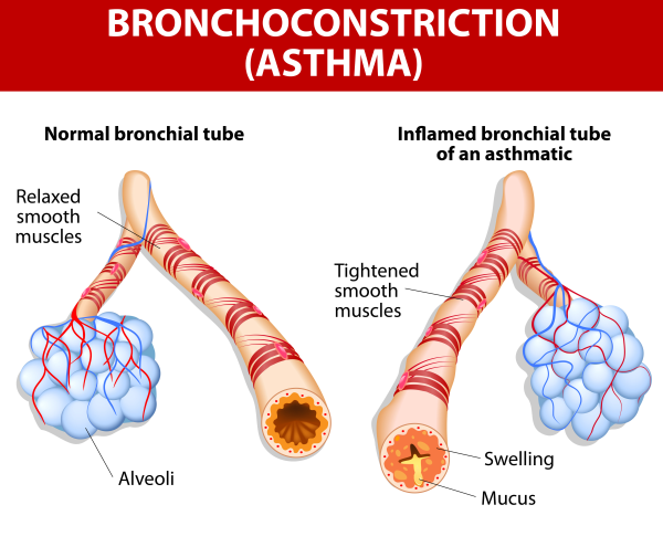 Asthma or Bronchoconstriction - Pooler GA